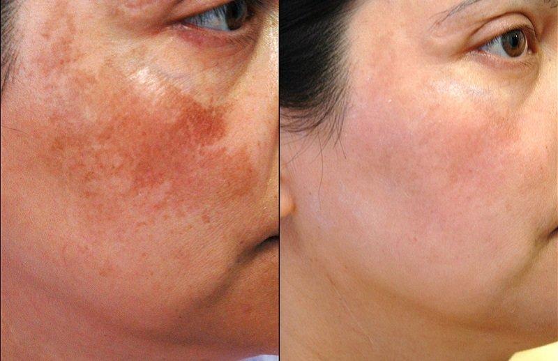 Пигментные пятна на лице от солнца как избавиться в домашних условиях