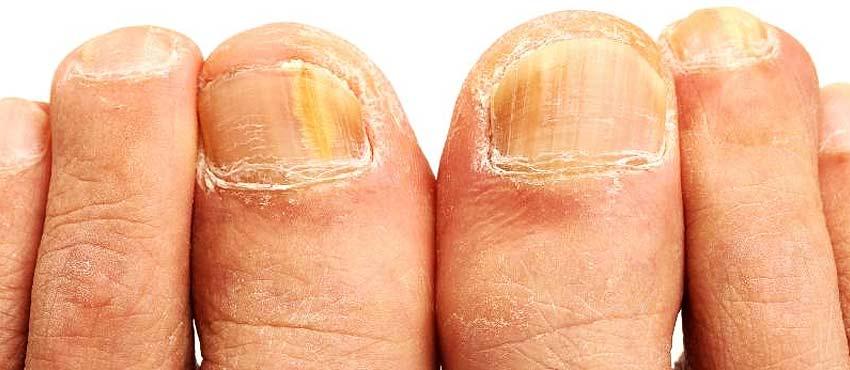 Как эффективней вылечить грибок стоп и ногтей
