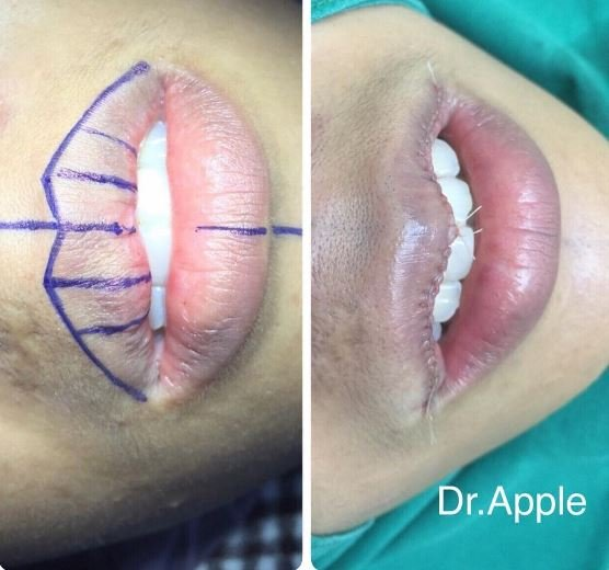 Новый тренд – операция по уменьшению губ – да, это правда. Дождались!