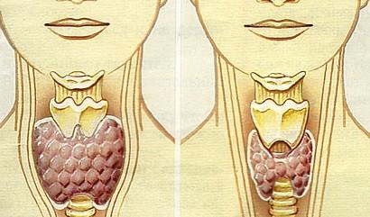 8 признаков дисфункции щитовидной железы, которые я игнорировала, а оказалось очень зря...