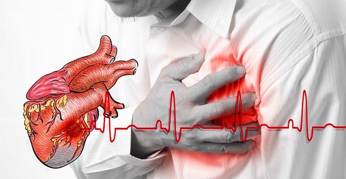 Кардиолог показал как любой человек может остановить сердечный приступ за 1 минуту