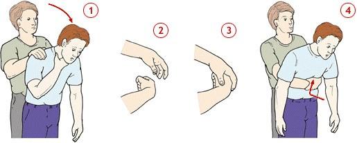 Как правильно оказать первую помощь ребенку, который подавился или поперхнулся. Всем родителям!