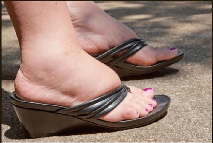 Природные средства для оттекших лодыжек и ступней!