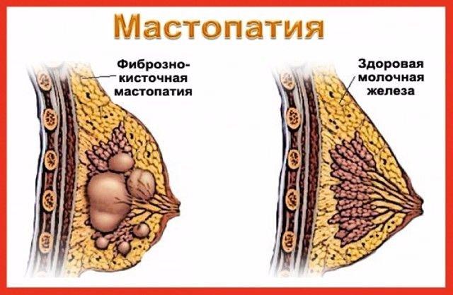 Валериана и зверобой успешно борются с мастопатией. Почему же я не знала этого раньше...