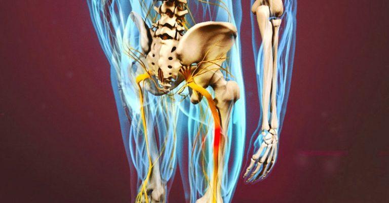 Разблокируй седалищный нерв: делай ЭТИХ 2 простых упражнения, чтобы избавиться от боли
