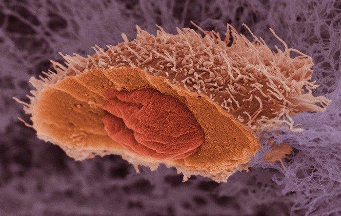 Как убить бессмертную раковую клетку