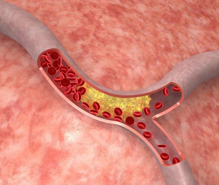 низкий холестерин в крови у женщин