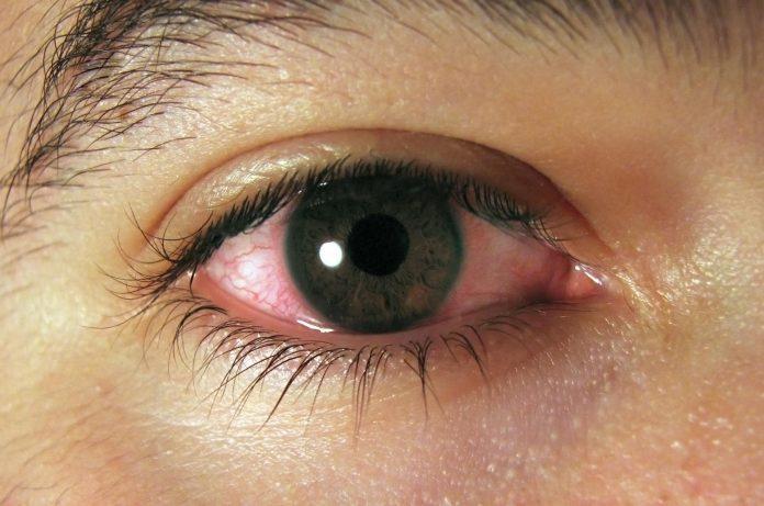 ВНИМАНИЕ!Это может вызвать рак, приводит к слепоте, развитию диабета 2 типа, ожирению, болезни сердца и слабому иммунитету!