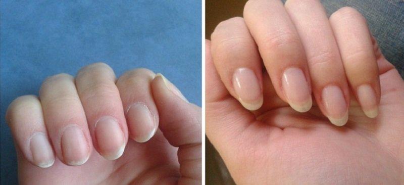 Быстро отрастить ногти, которые не поломаются, теперь легче простого!