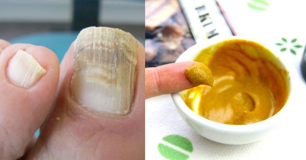 Рецепт куркумы при грибке ногтей