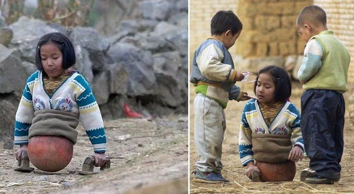 После несчастного случая она осталась без ног и ходила при помощи мяча, а теперь она известная спортсменка!