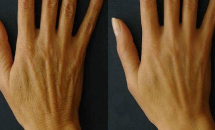 Быстрое омоложение кожи рук