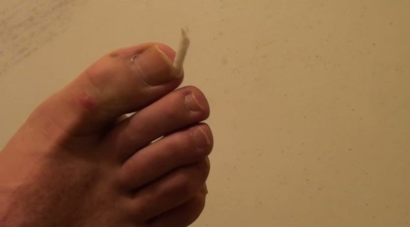 Врастание ногтей – серьезная проблема. Но от нее можно легко избавиться в домашних условиях.