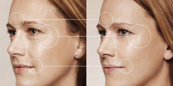 Революционный косметологический метод, который позволяет омолаживать кожу на теле.
