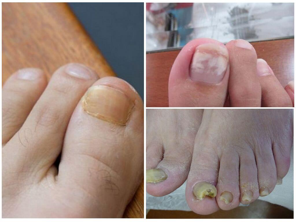 Дерматологи рассказывают: как навсегда избавиться от онихомикоза (грибка ногтей)!