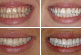 Эффективное отбеливание зубов в домашних условиях: лучше профессиональной чистки!