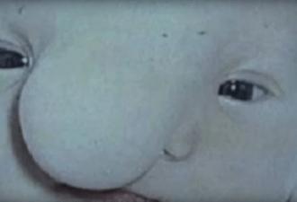 Впервые увидев сына, мама пожалела, что он не родился мертвым. Всю жизнь она стыдилась этих мыслей.