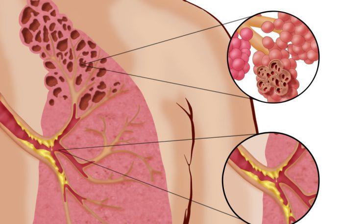 Оказывается, электронные сигареты вызывают неизлечимую болезнь под названием »Попкорн лёгкие»