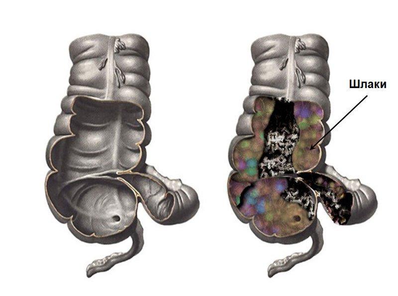 Марва Оганян: Смерть идет из кишечника