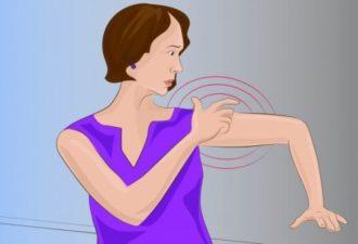 Симптомы инсульта, о которых женщины должны быть наиболее осведомлены