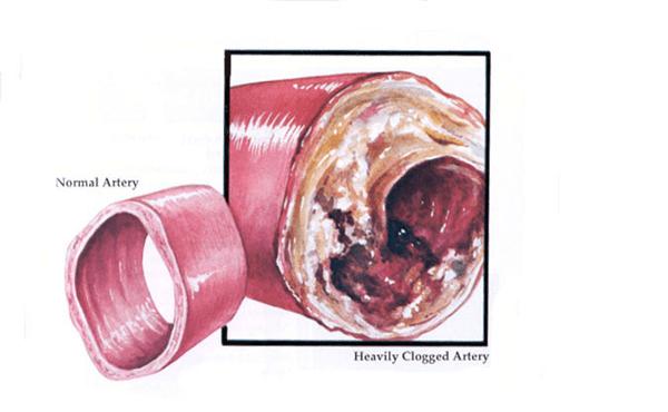 К чему приведёт ежедневное употребление одной дольки чеснока на пустой желудок