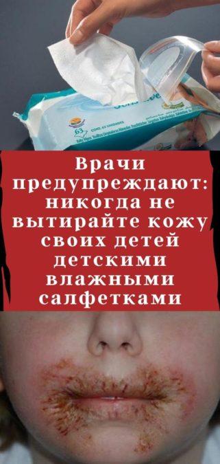 Врачи предупреждают: никогда не вытирайте кожу своих детей детскими влажными салфетками