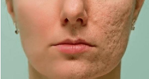 Простое домашнее средство, способствующее исчезновению шрамов, морщин и пятен на коже