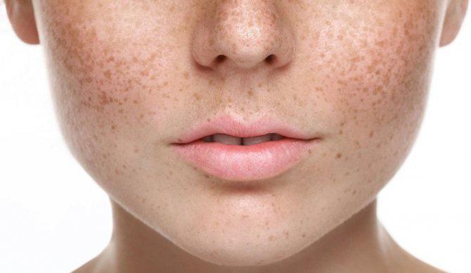 Как вывести коричневые пятна на коже лица простым домашним средством