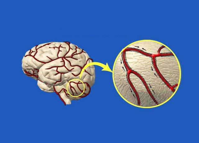 Натуральное очищение сосудов головного мозга. Самые мощные рецепты народной медицины!