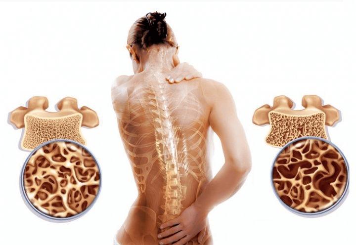 Укрепи кости и остеопороза не будет! Используем 3 сильнейших продукта