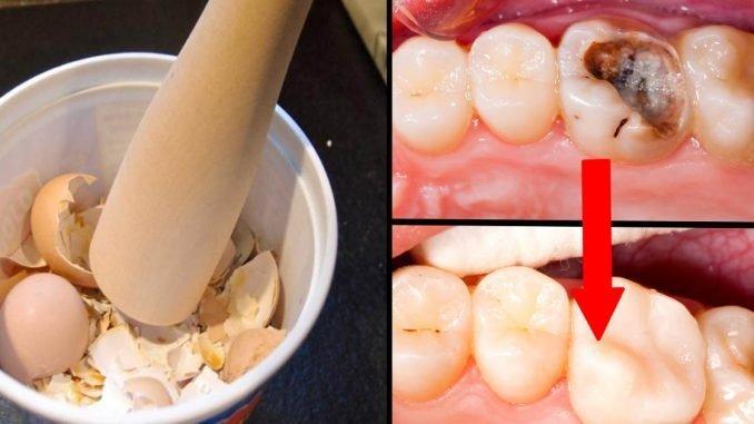 Как самостоятельно избавиться от кариеса с помощью яичной скорлупы