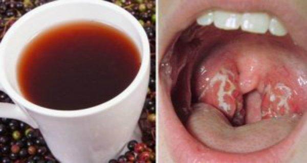 Врач дал совет - как избавиться от инфекции горла за несколько часов