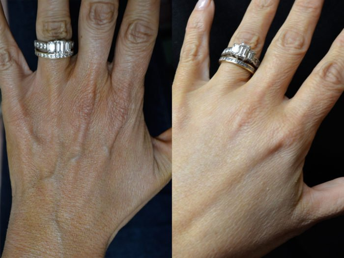Помолодевшая, гладкая и шелковистая кожа рук. Простые домашние средства