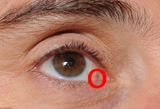 Мужчине был поставлен диагноз – рак глаза! А все из-за одной простой вещи, которую мы делаем каждую ночь!