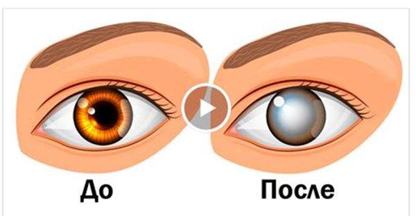 Офтальмологи предупреждают! Эта привычка приводит к слепоте и не только…