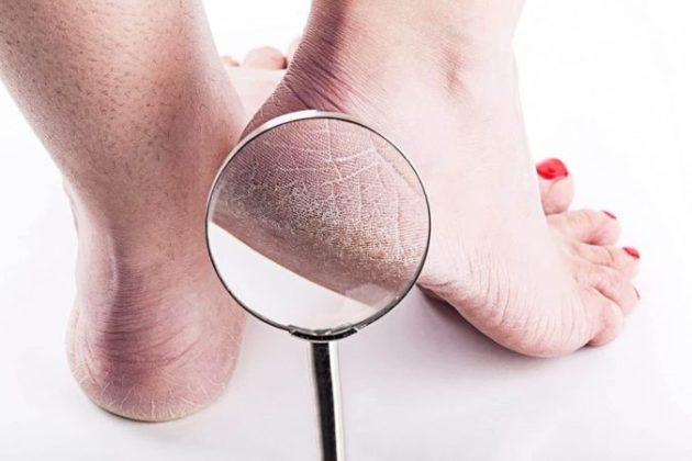 3 простых шага помогут превратить сухие потрескавшиеся пятки в гладкие и красивые