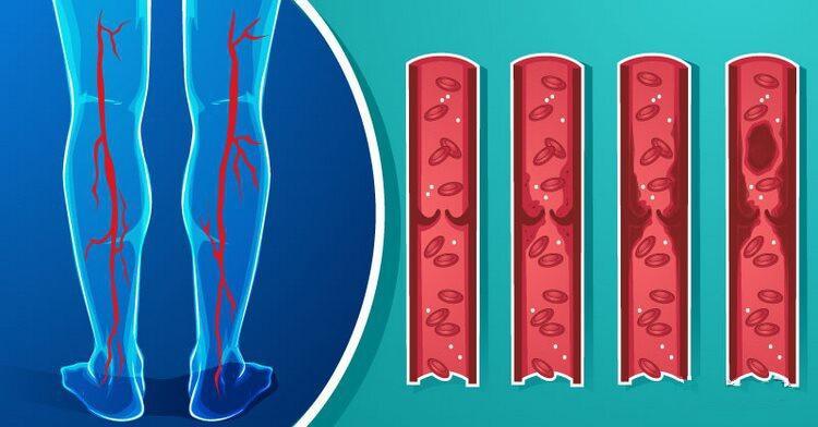 Как разжижать густую кровь без лекарств - натурально и действенно!