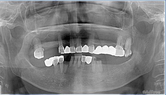 Стоматолог рассказывает о тех, кто выбрал дорогой телефон вместо лечения