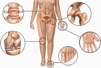 5 натуральных противовоспалительных средств
