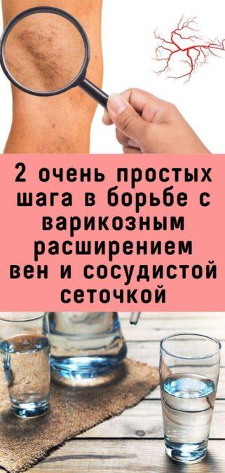 2 очень простых шага в борьбе с варикозным расширением вен и сосудистой сеточкой