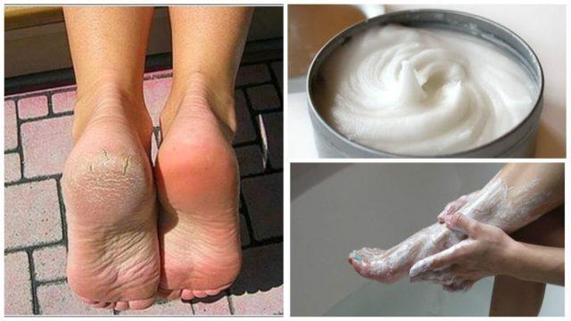 Домашнее средство для устранения мозолей и грибков с ног!