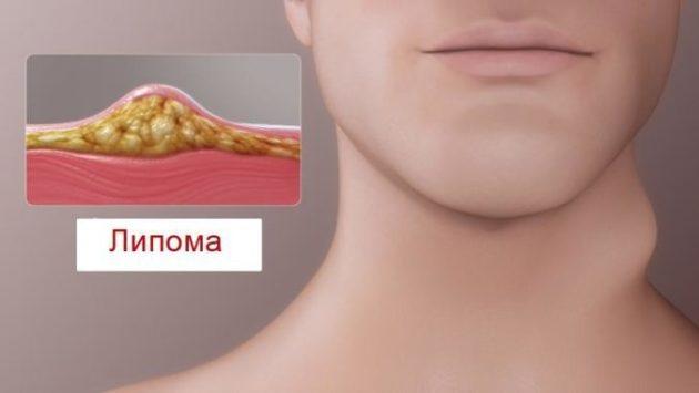 Научилась лечить шишки на коже, известные как Липомы. Смотрите видео