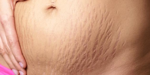 Надоевшие шрамы, пятна и растяжки уйдут с вашей кожи быстрее, чем вы думаете! Пишите рецепт
