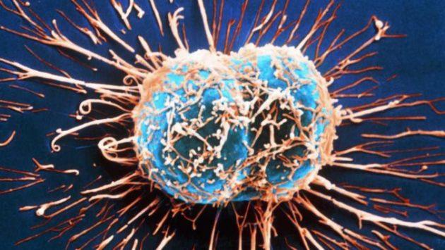 Раковые клетки не переносят эти 5 продуктов. На сколько регулярно их употребляете вы?