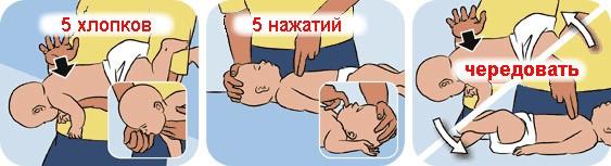 Как оказать первую помощь ребенку, который подавился или поперхнулся