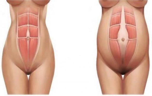 Кортизоловый живот: почему он появляется и как без таблеток избавиться от стрессового жира