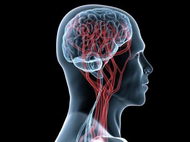 Давно храню этот рецепт от сужения сосудов головного мозга - боль исчезает