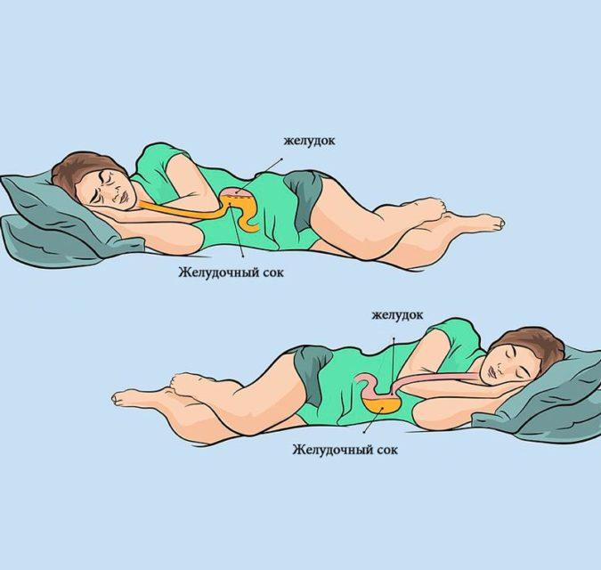Почему важно спать именно на левом боку? А что по этому поводу говорят врачи?!