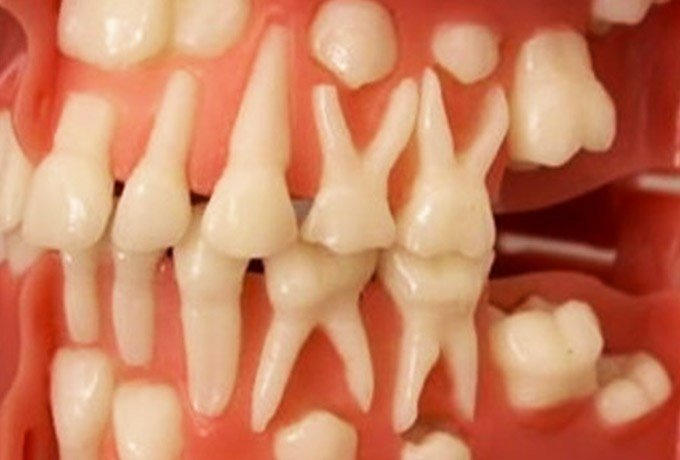 НОВОСТЬ ДНЯ! Стало возможным вырастить зубы в любом возрасте!