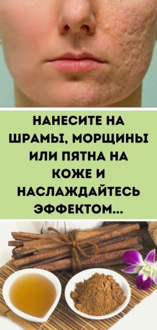 Нанесите на шрамы, морщины или пятна на коже и наслаждайтесь эффектом...
